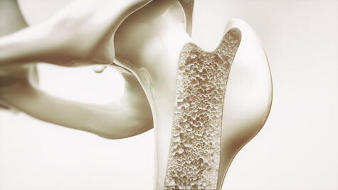 La osteoporosis afecta los huesos a falta de calcio.